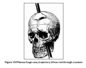 Figure 10 (Part 1) Psychosurgery